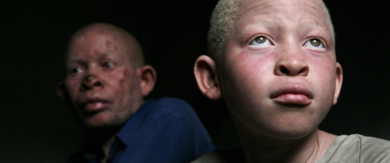 """South Africa must step up action to end 'racial discrimination"""" against people with albinism, says UN expert"""