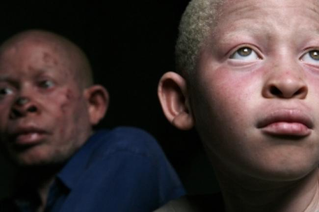 "South Africa must step up action to end 'racial discrimination"" against people with albinism, says UN expert"